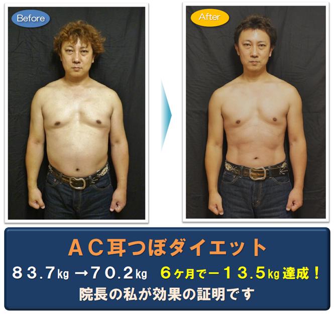 松戸市 新松戸 交通事故・腰痛治療センター ポプラはりきゅう整骨院